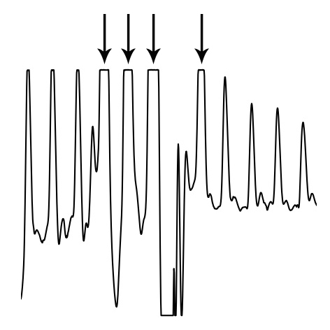 Algorithm functioning — Python Heart Rate Analysis Toolkit